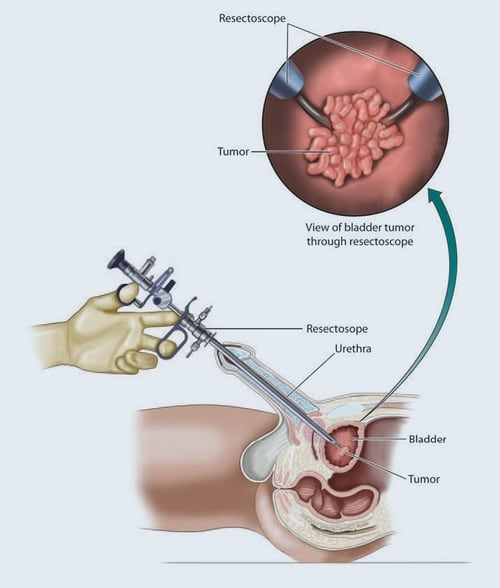 cystoscopy procedure for bladder cancer detection and maintenance